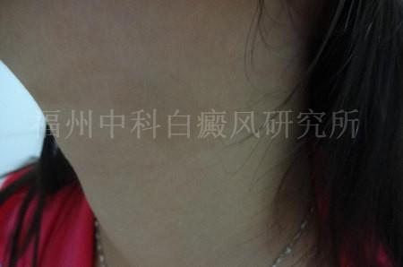 女性颈部白癜风三个月2.jpg