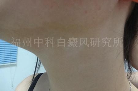 女性颈部白癜风三个月1.jpg
